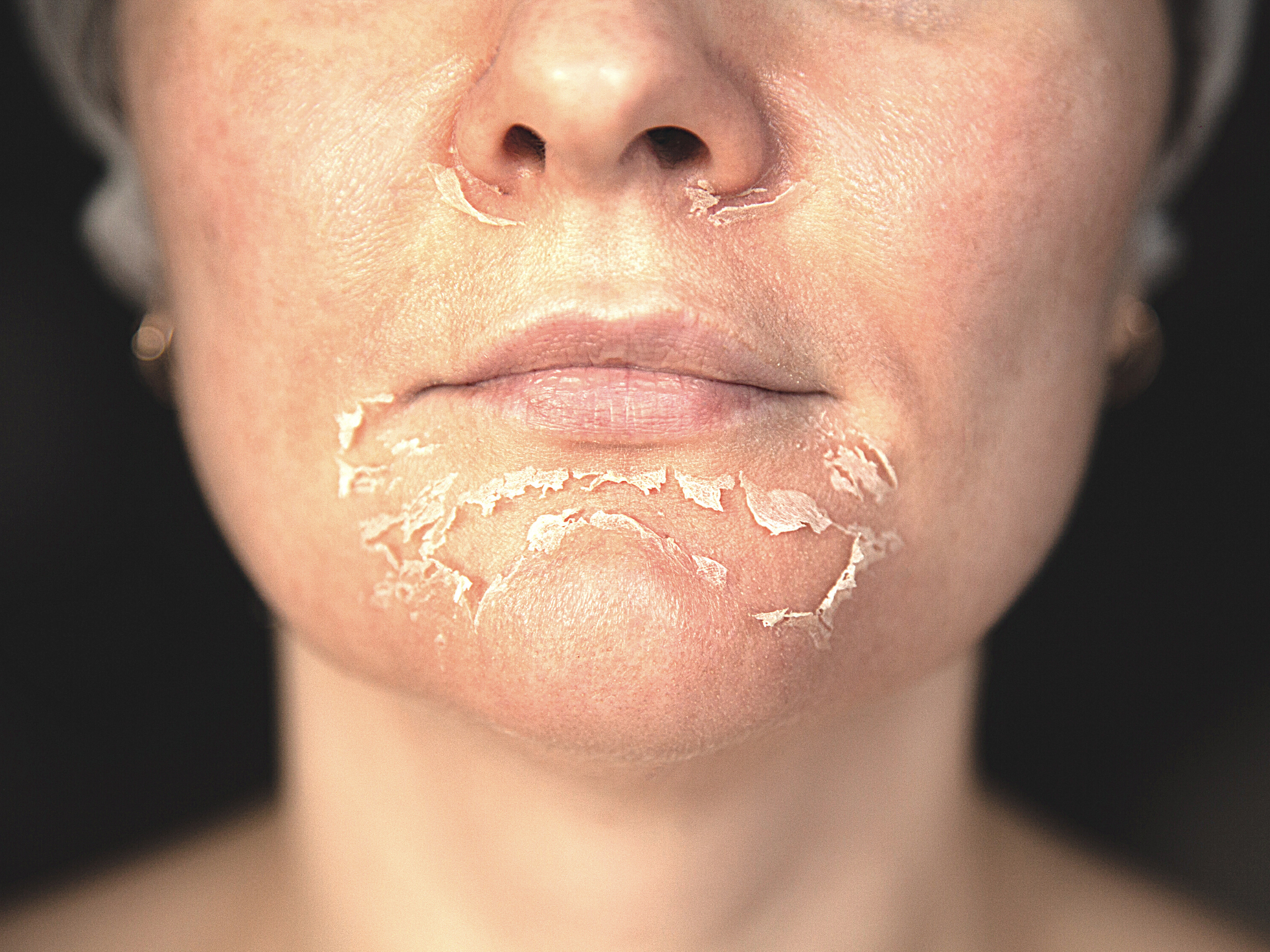 woman with dead skin peeling off her chin and around her nose