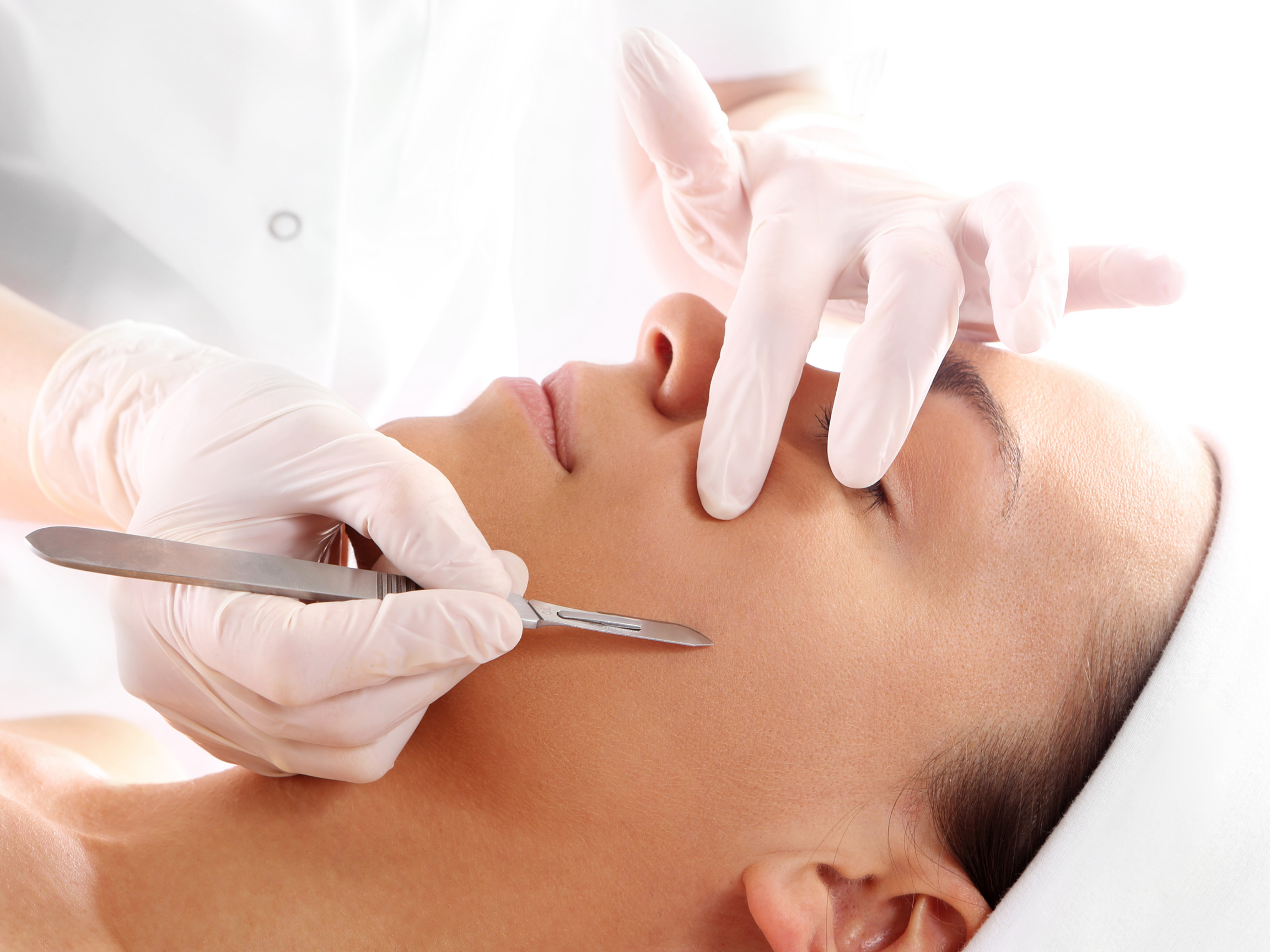 woman receiving a professional dermaplaning treatment from someone with gloved hands and a scalpel