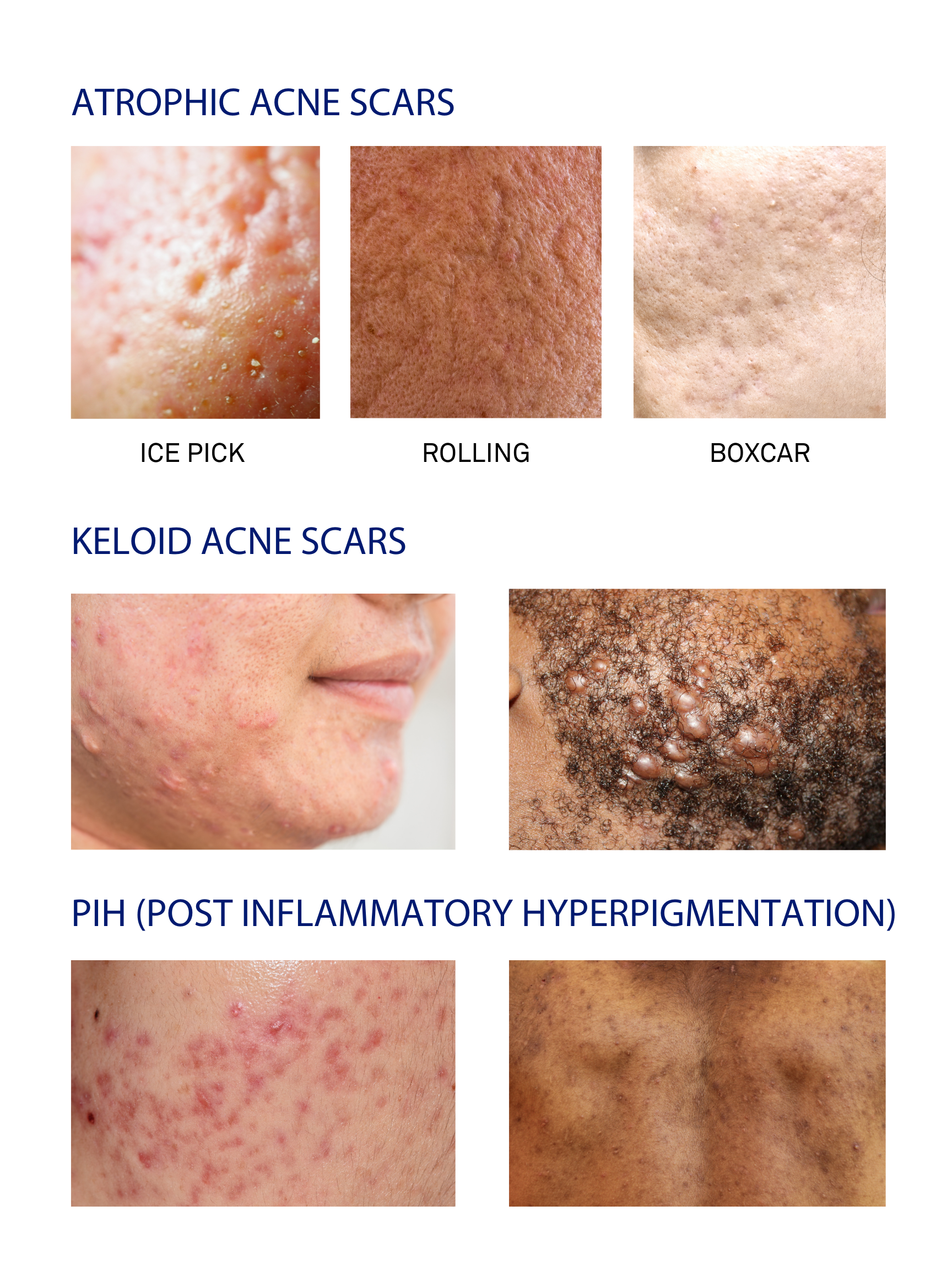 infographic showing what different kinds of acne scars look like