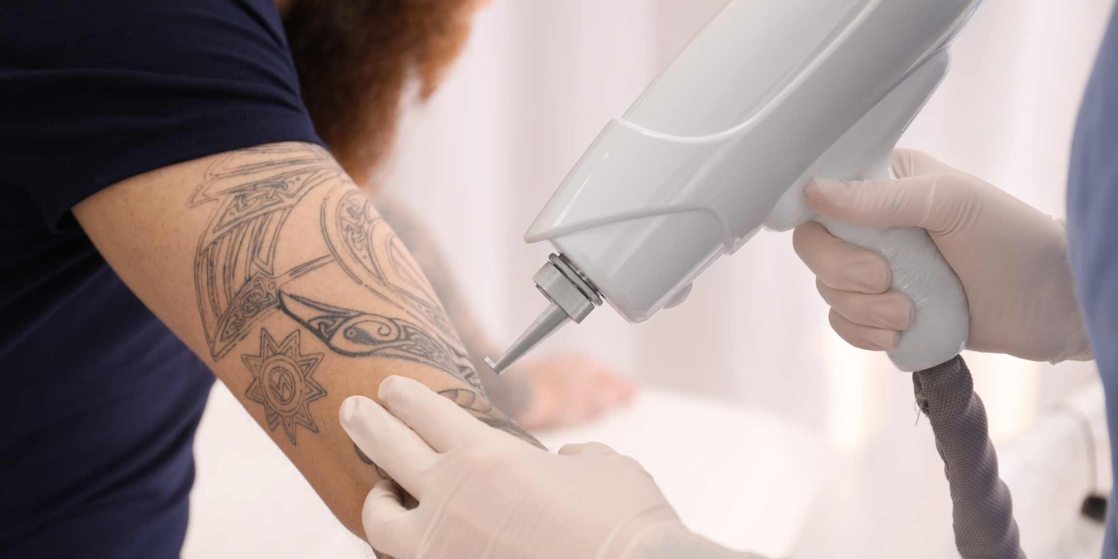 person with arm tattoo getting laser tattoo removal treatment